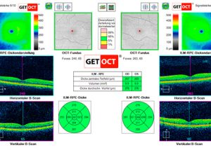 OCT-Tomografia-de-Coerencia-Optica
