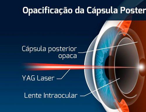 Capsulotomia ou Yag Laser
