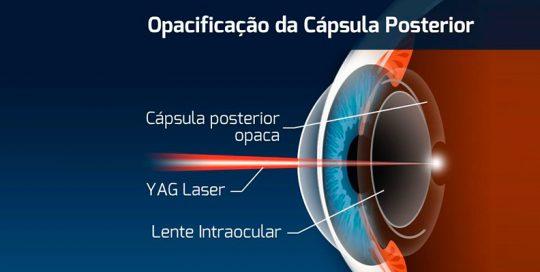 capsulotomia-yag-laser
