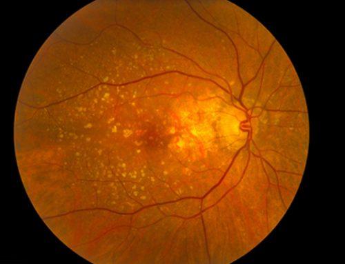Tratamento de DMRI (Degeneração Macular Relacionada à Idade)