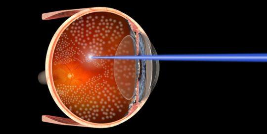laser-argonio-quinellato-destacada