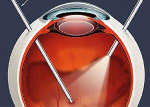 retina-quinellato-destacada