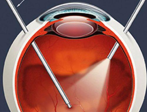Cirurgia de Retina